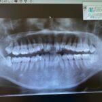 歯列矯正のリアル記録③キズを早く治す栄養は?〜手術後や怪我をした時
